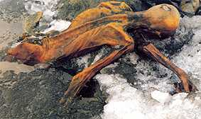 Oetzi as he was discovered as the Tyrolean Iceman in the alps.